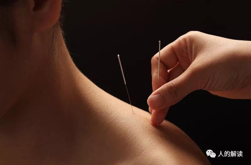 经络系列[11] 针灸治病的原理,想不到竟然是这样的-人的解读